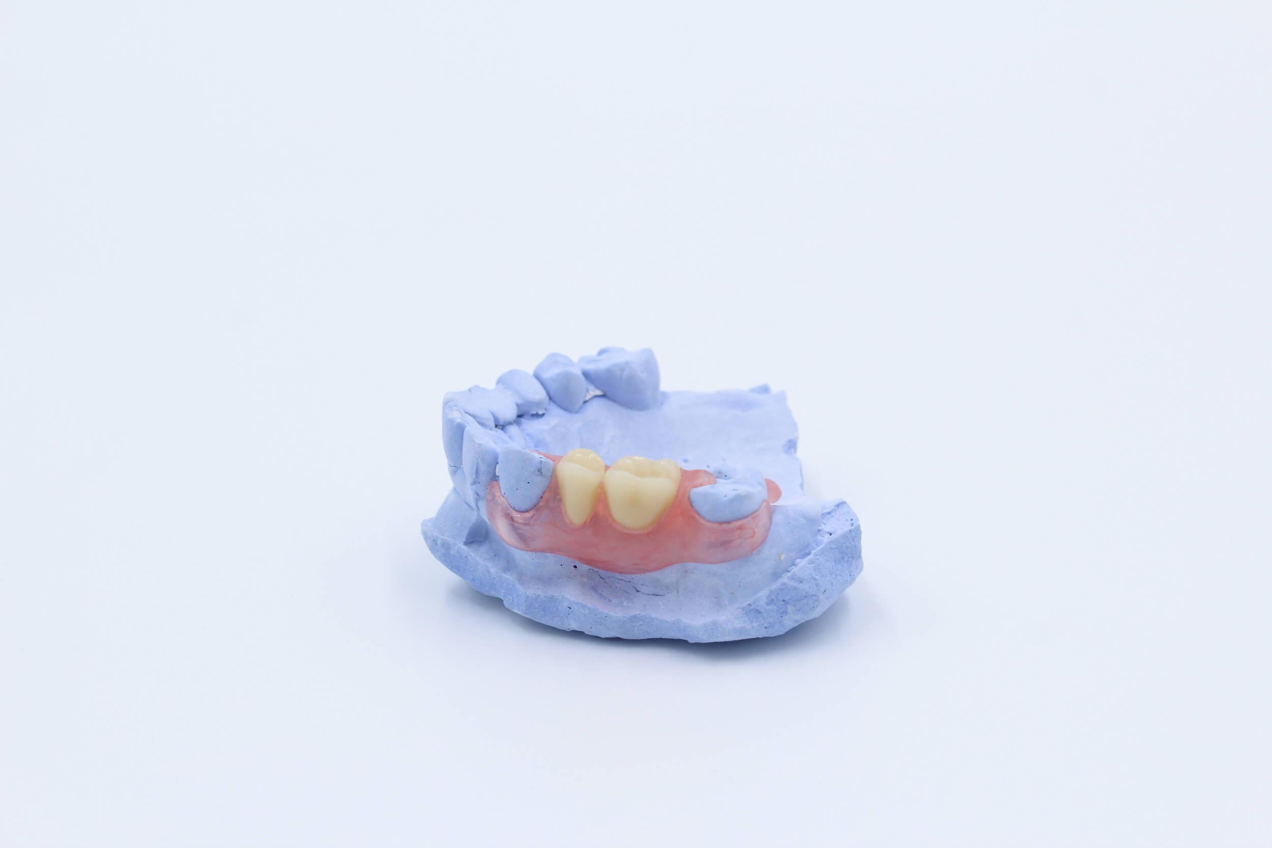 coronas-dentales-clinik-tj