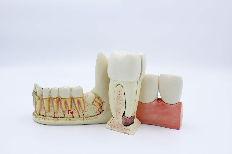 dentista-en-tijuana-clinik-tj