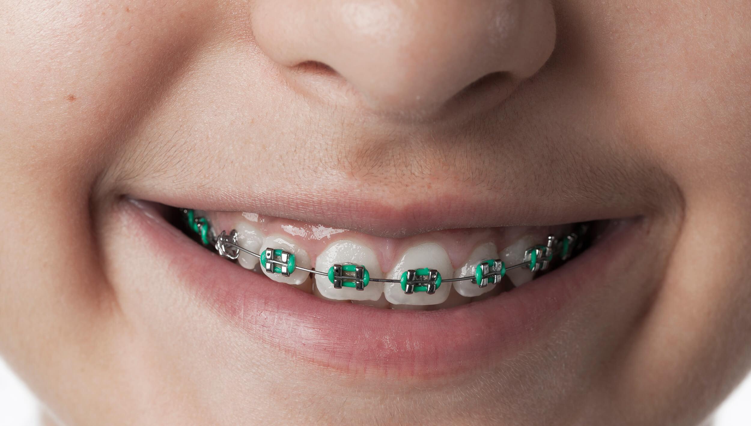 ortodoncia-clinik-tj-dentista-en-tijuana