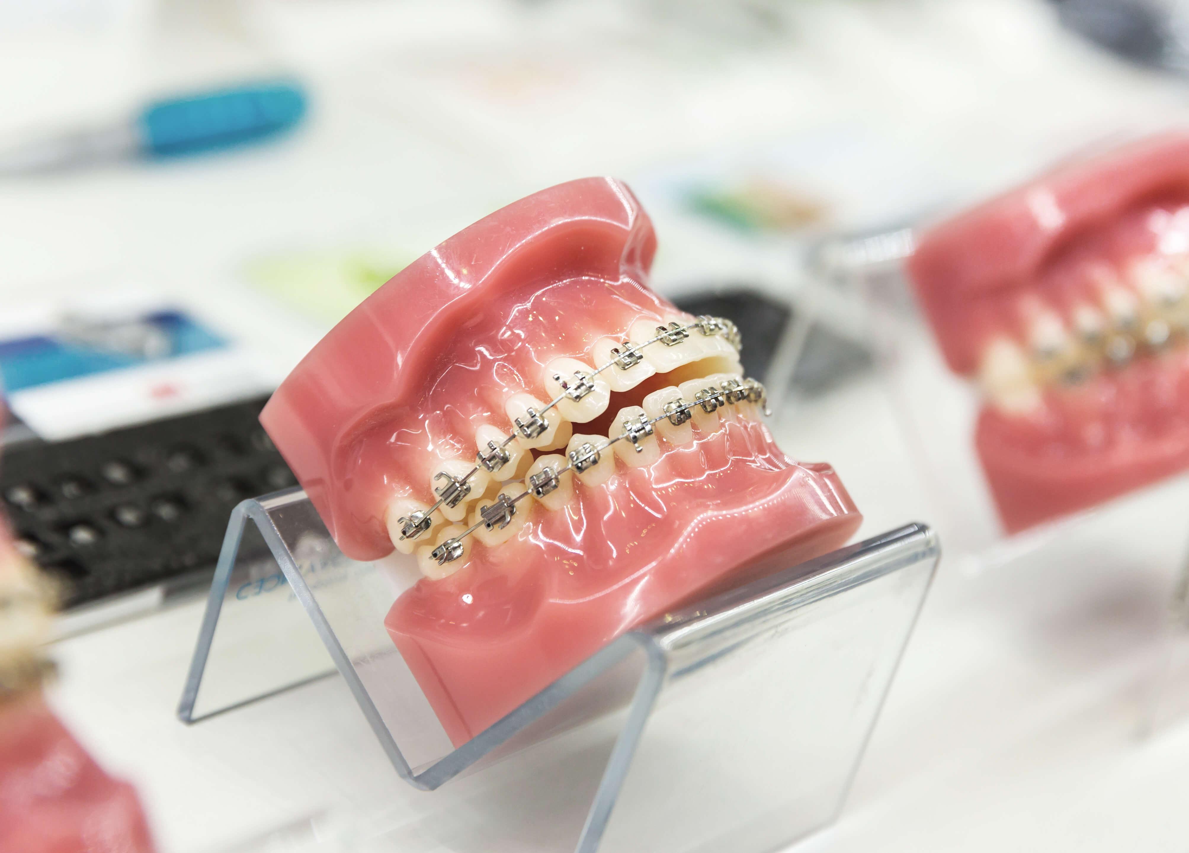 que-es-la-ortodoncia-clinik-tj